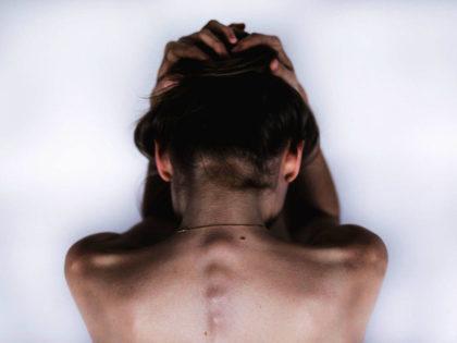 migrena z aurą